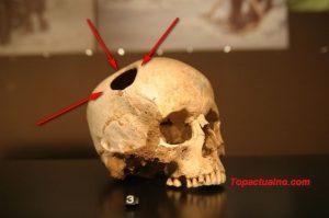 операции на мозъка