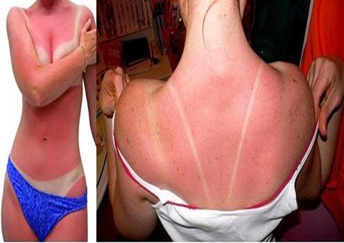 слънчево изгаряне