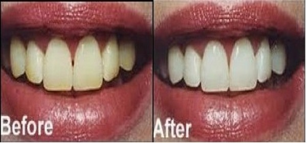 паста за зъби