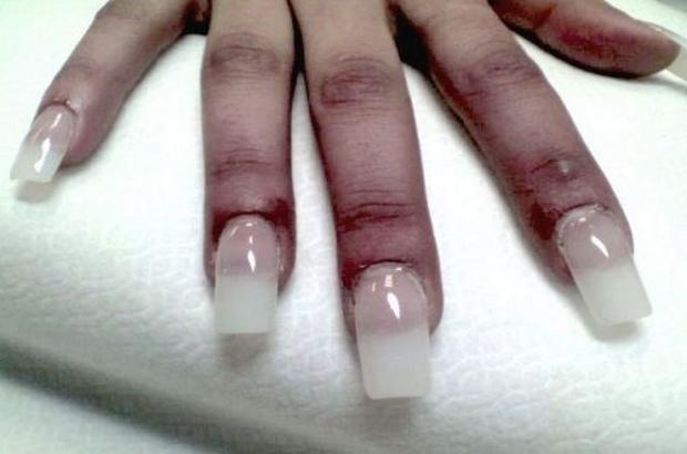 nokti-lepilo