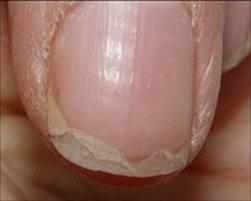 Смес от зехтин и лимон е отличен лек при чупливи нокти
