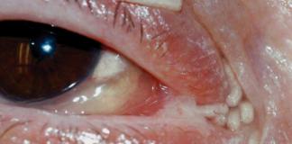 Това е окото на жената заразена с ларви от муха.