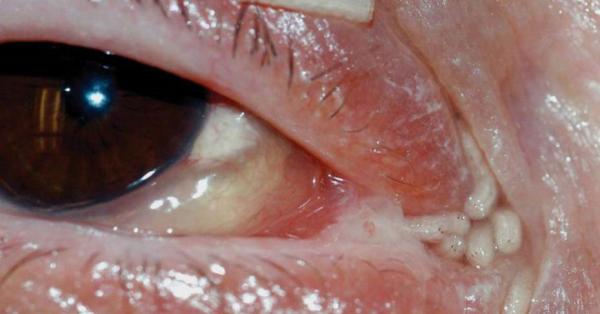 Това е окото на канадката, заразена с ларви от муха.