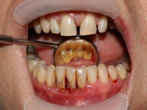 Начини за лесно почистване на зъбен камък