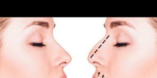 носът