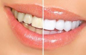 избелването на зъби