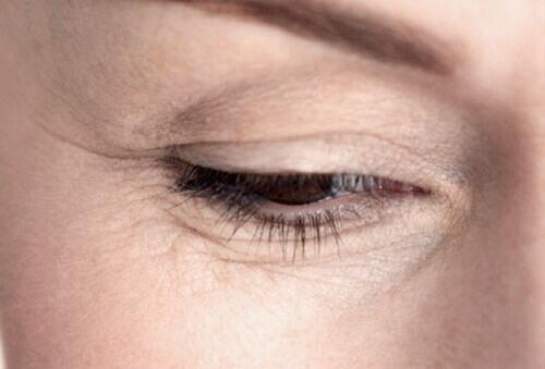 бръчките около очите