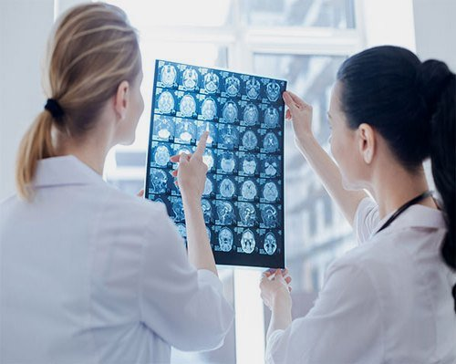 безплатни прегледи главоболие